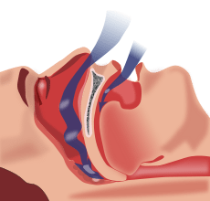sleep-apnea-small